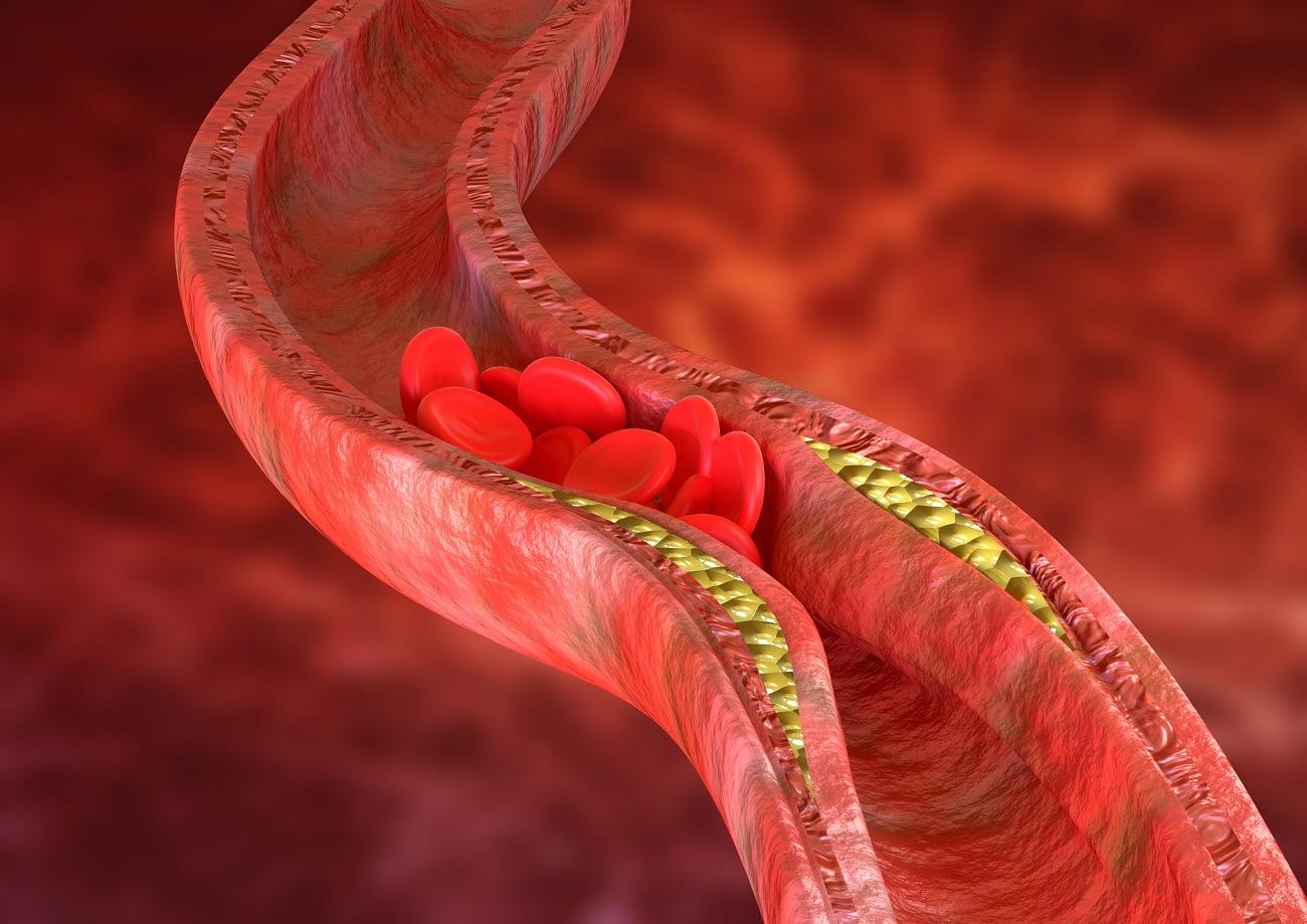 cholesterol - miażdżyca tętnic